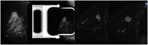 Breast MRI After Mammography Could Help Identify Additional Aggressive Cancers