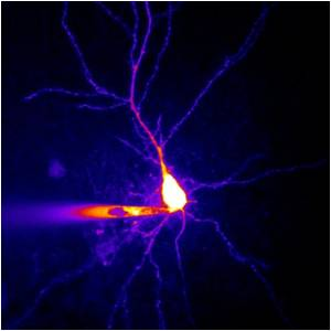 Spermine Inside Neurons Dampens the Neurons Excitability