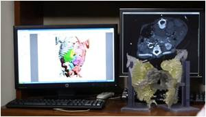CT Imaging and 3-D Printing Technology Aid Surgical Separation of Conjoined Twins