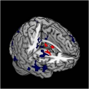 Neurological Processing of Schizophrenia as Complex as the Disorder Itself