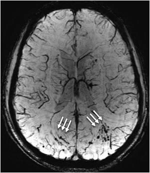 MRI Shows Brain Scars In Blast Survivors