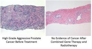 """Scientists Discover New """"Suicide Gene"""" Therapy To Kill Prostate Cancer Cells"""