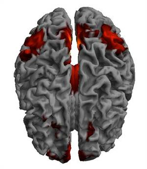 New 'Biomarker' to Identify Individuals at Risk of Developing Depression