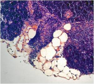 Life-Extending Hormone Produced by Thymus Gland Bolsters Body's Immune Function