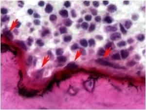 Mutation Causes Fragile Bones in Children Born With Hajdu-Cheney Syndrome