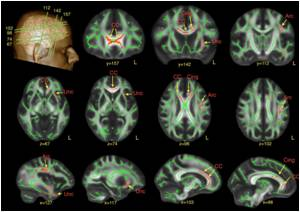 Scan Reveals Subtle Differences In The Brain Of Men With Autism