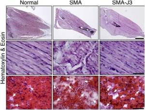 New Therapeutic Target Unveiled for Spinal Muscular Atrophy