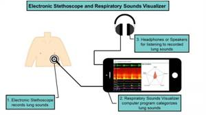 New Electronic Stethoscope and Computer Program to Diagnose Lung Conditions