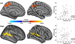 MRI Shows Impact of Post Traumatic Stress Disorder in Earthquake Survivors