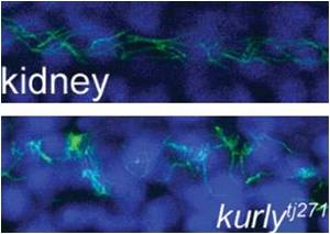 'Kurly' Protein is Responsible for Orientation and Motility in Cilia