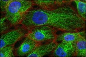 Elevated Levels Of Predictive Proteins Trigger Metastases Of Cancer Cells