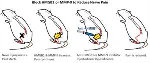 New Drug Targets for Reducing Nerve Pain Identified