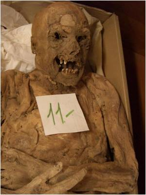 Hungarian Mummy Shows a Colon Cancer Mutation
