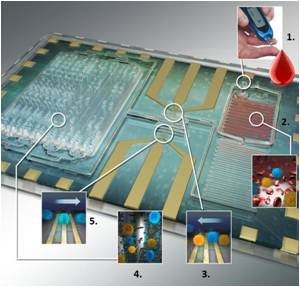 New Biochip Offers Specific Leukocyte Counting for HIV Diagnosis