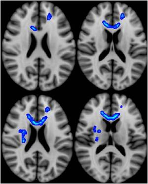 Diffusion Tensor Imaging May Predict Effects of Mild Traumatic Brain Injury in Veterans