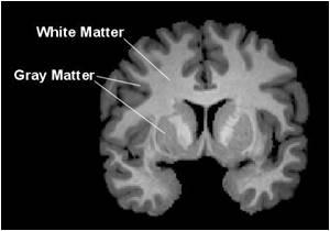 MRI Used To Detect Abnormalities in Phenylketonuria