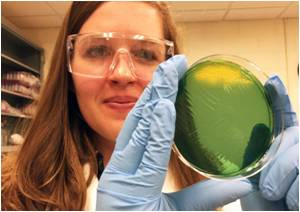 Vibrio Cholerae Strains Much More Diverse Than Previously Thought