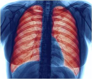 Increased Risk of In-Hospital Mortality Linked to Interstitial Lung Abnormalities