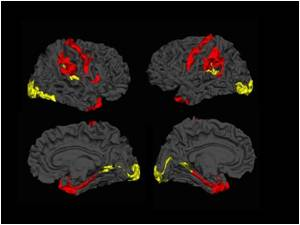 Brain Tissue Increases in Some Regions for Patients With Schizophrenia