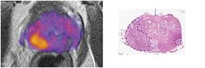 Imaging Biomarker Distinguishes Prostate Cancer Tumor Grade and Guides Treatment