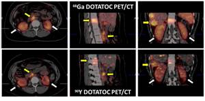 Molecular Imaging Technique Optimizes Radiotherapy Dose