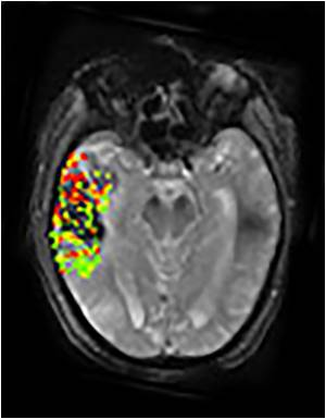 New Imaging Method Predicts Post-Treatment Brain Bleeding in Stroke Patients