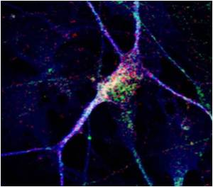 New Neurons Reveal Clues About an Individual's Autism Spectrum Disorder