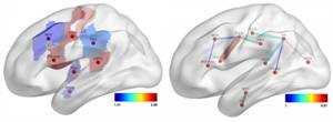 Connectome-Based Imaging can Better Predict Language Deficits After Stroke