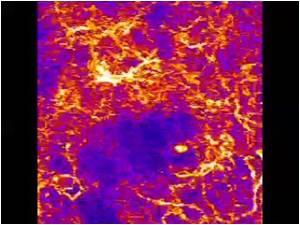 Neuroscientists Identify Dopamine Neurons Involved in Movement and Reward