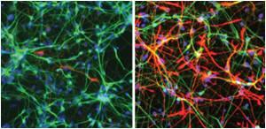 Understanding the Metabolic Shift That Growing Neurons Undergo