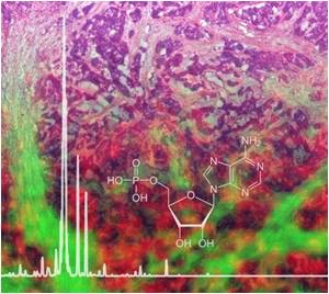 New Protocol Enables To Analyse The Metabolite Composition of Tissues