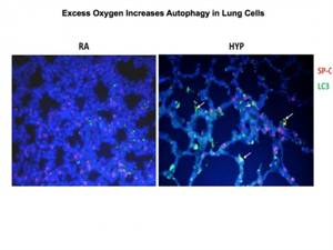 Triggering Autophagy Decrease Lung Injury in Mice Exposed to High Oxygen Levels