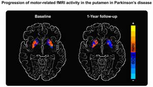Functional Magnetic Resonance Imaging Breakthrough Could Improve Parkinson's Treatment