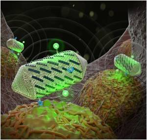 Protein-Shelled Nanostructures To Detect Tumor Using Ultrasound