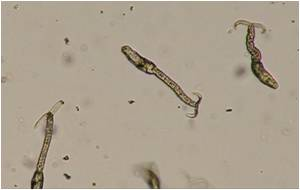 Heat Shock Protein 70 Appears to Turn on Schistosoma Invasion