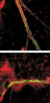 Protein S Helps in Formation of Healthy Blood Vessels