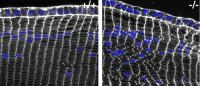 Disruption of Spectrin-Actin Network Causes Lens Cells in the Eye to Lose Shape