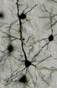 Controller of Brain Circuitry Discovered by Johns Hopkins Scientists