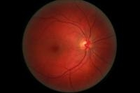 Diabetic Retinopathy Possibly Treated With Same Drugs As For AMD