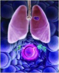 Personalized Treatment For Lung Cancer Offers Good Chances Of Recovery