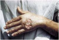Novel Method to Diagnose Parasitic Diseases