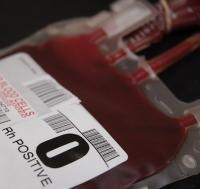How to Make Extended Blood Group Typing More Widely Available