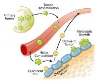 Research Says Prostate Cancer Spreads to Bones by Overtaking the Home of Blood Stem Cells