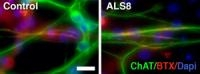 Amyotrophic Lateral Sclerosis - New Findings