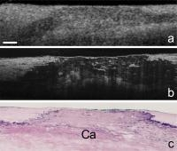 Cellular Details of Coronary Arteries Revealed by High-Resolution Imaging Technology