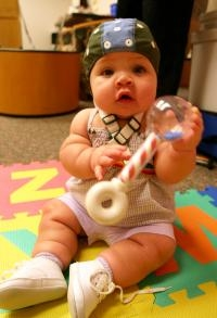 Early Brain Differentiation Associated With Bilingual Babies' Vocabulary