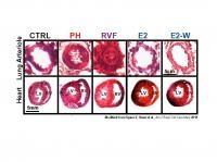 Hormone May Help Reverse Severe Pulmonary Hypertension