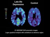Plaques and Tangles in Brains of Severely Depressed Older Adults may be Detected by Imaging Technique