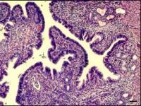 Gene Mutation Offers Hope for Effective Endometriosis Screening