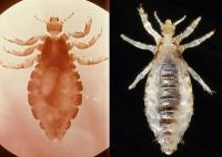 Probable Identical Species, Head and Body Lice: Genetic Study